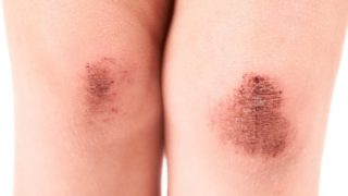 Causes & Symptoms Of Abrasions