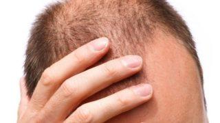 Male Pattern Baldness: Causes, Symptoms & Treatments