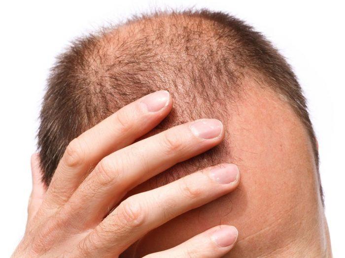 Baldness - MANNELIJK KAALHEID: OORZAKEN, SYMPTOMEN & BEHANDELINGEN