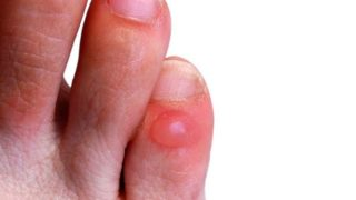 Foot Blisters: Causes, Treatments & Home Remedies