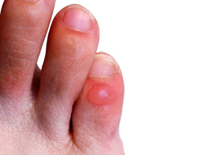Foot Blisters: Treatments & Home Remedies | Organic Facts