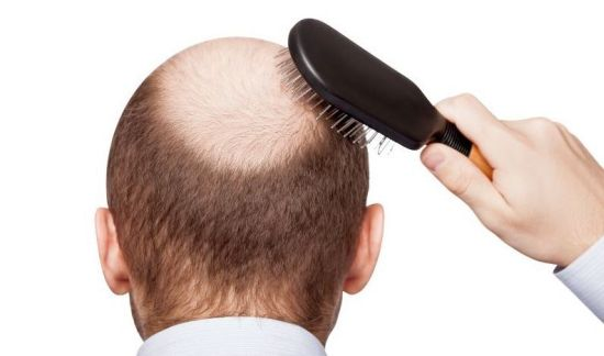 Hair Loss Treatment with Honey