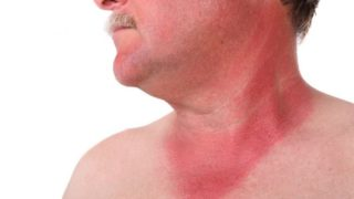 20 Effective Home Remedies for Sunburn