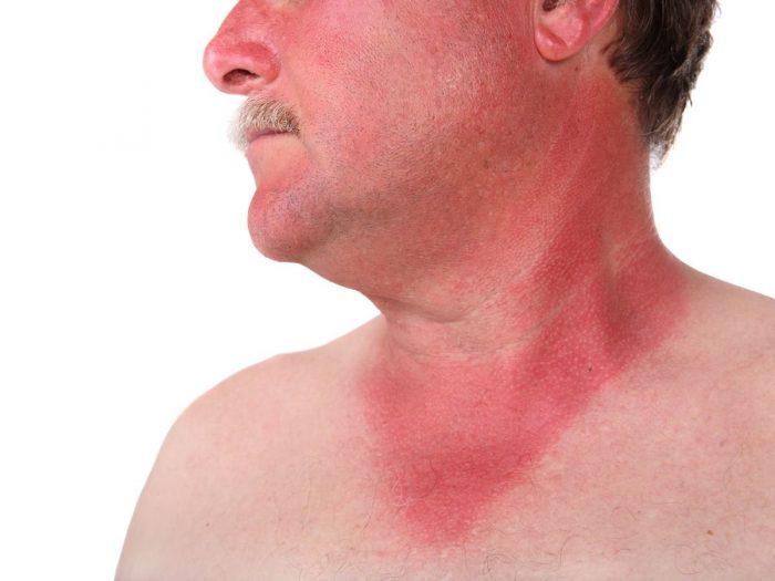 Home Remedies for Sunburn