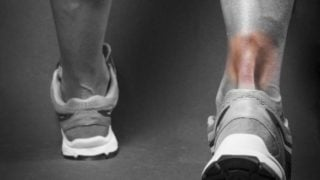 7 Effective Home Remedies for Achilles Tendinitis