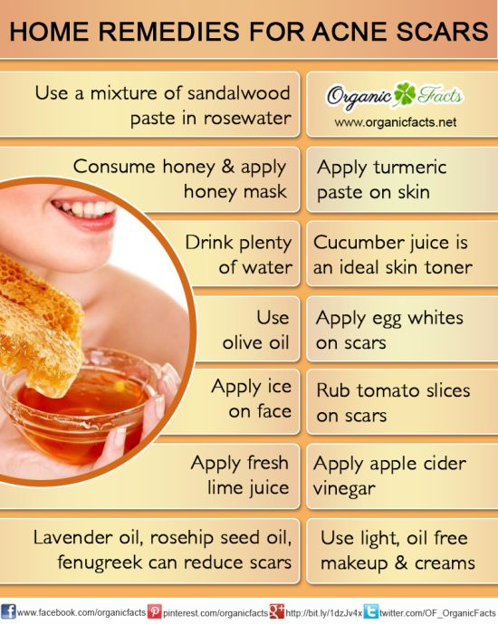 Natural Remedies For Deep Scars