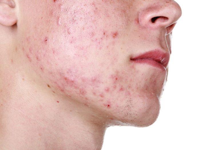 Como sanar la piel sobre la persona de los granos