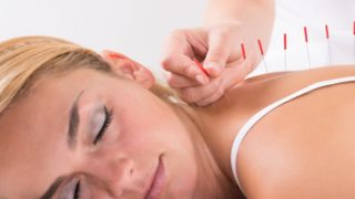 8 Important Benefits of Acupuncture