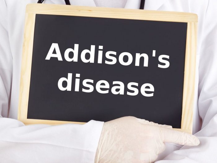 addisonsdisease