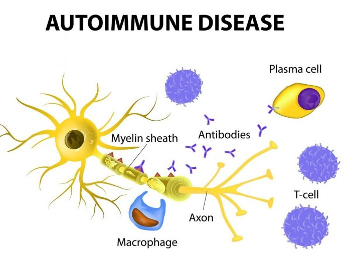 11 effective home remedies for autoimmune diseases | organic facts, Skeleton