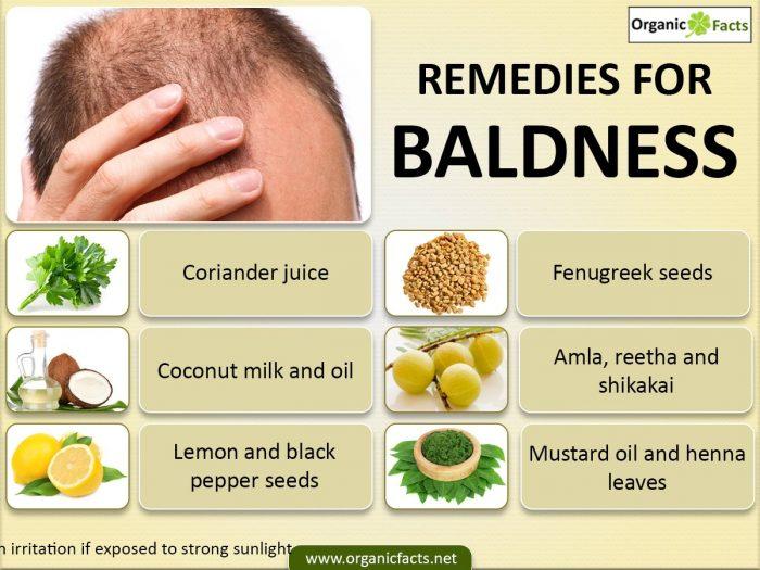 baldnessinfo03