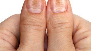 Beriberi (Thiamine Deficiency): Causes & Symptoms