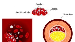 Blood Clots: Treatments & Home Remedies