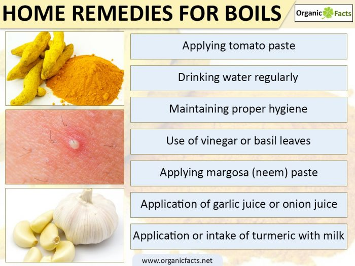Home remedies for anus boils foto 376