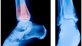 Heel Spur: Treatments & Prevention
