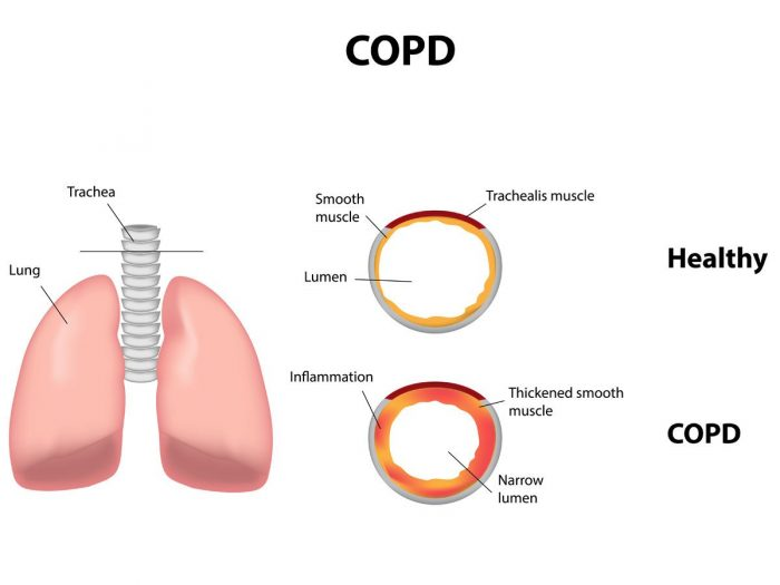 chronicobstructivepulmonarydiseaseCOPD