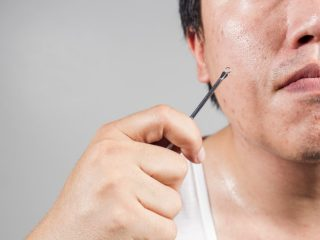 16 Effective Ways to Remove Acne Scars | Organic Facts