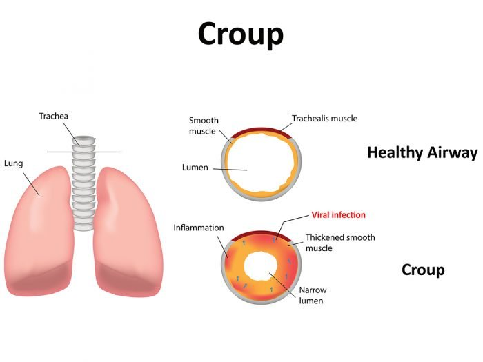Top 11 Essential Oils For Croup Cough Organic Facts