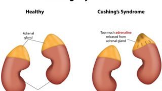 13 Effective Home Remedies for Cushing's Syndrome