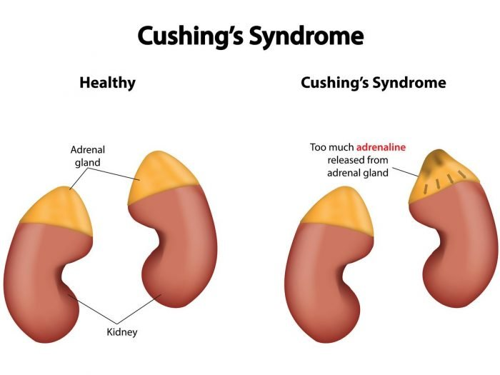 Natural Treatment For Cushing S Disease