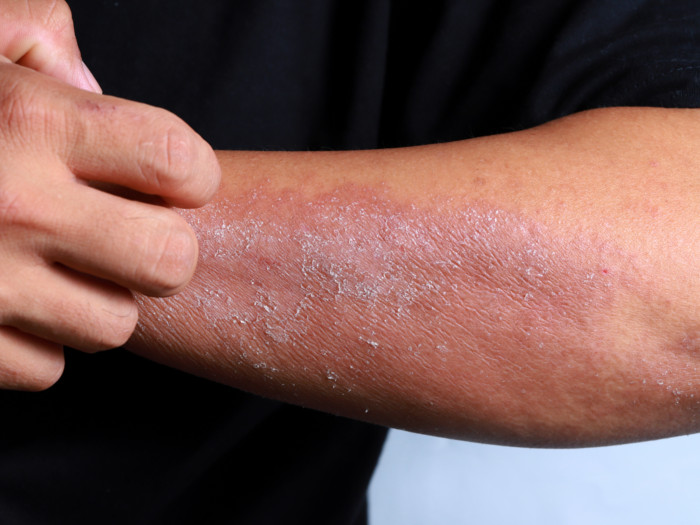 Contact Dermatitis: Types, Causes & Symptoms | Organic Facts