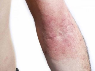 11 Best Home Remedies for Abrasions | Organic Facts