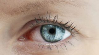 Glaucoma: Causes, Symptoms & Treatments