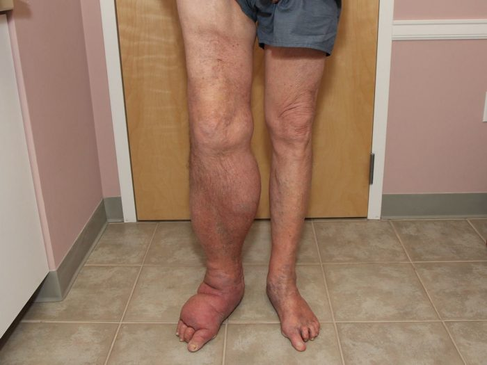 10 Effective Home Remedies for Edema   Organic Facts