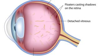 Eye Floaters: Causes, Symptoms, & Treatments