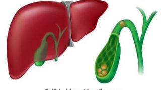 10 Effective Home Remedies for Gallbladder Disorders