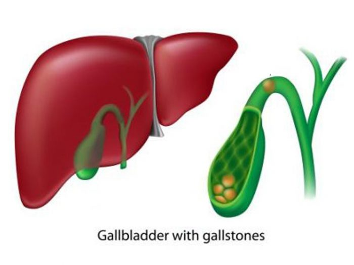 gallbladderdisorders
