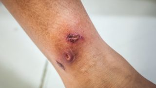 Gangrene: Causes & Symptoms