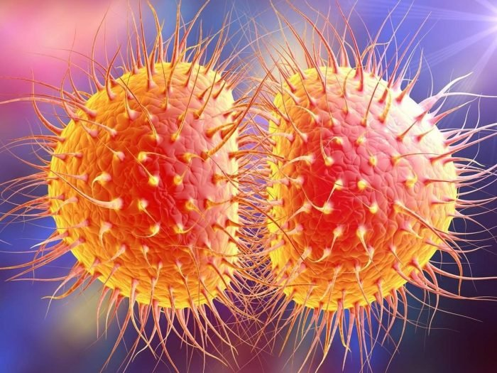 gonorrhea inflammation and mucous membranes Gonorrhea is common sexually transmitted infection usually infecting a mucous membrane such as the vagina, urethra, anus, throat, and the eyes.