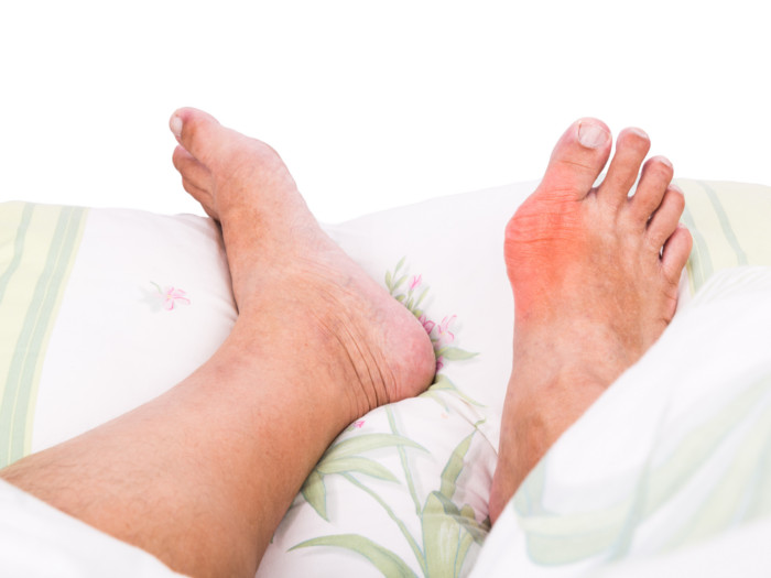7 Best Home Remedies for Gout | Organic Facts
