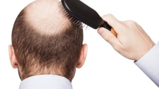 9 Common Causes of Hair Loss