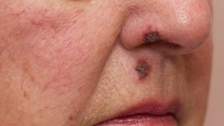 Impetigo: Causes & Symptoms