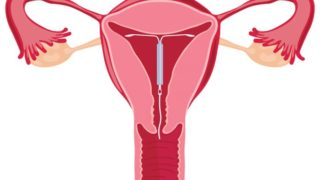 Things You Should Know About IUD Pregnancy