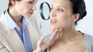 Melasma (Chloasma): Causes, Symptoms & Treatments