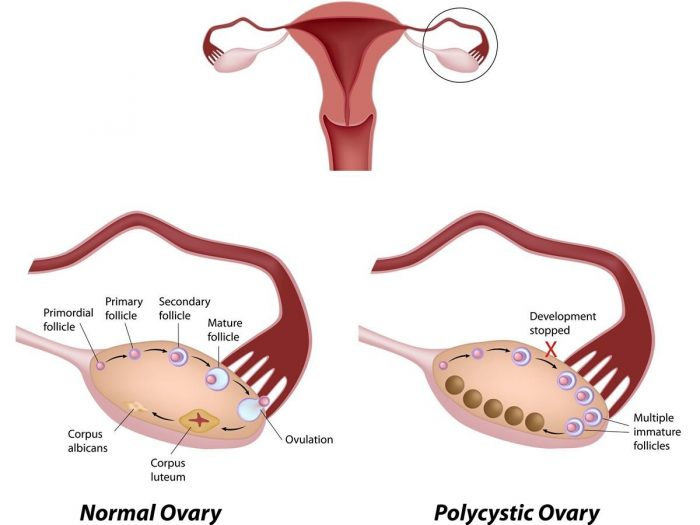 ovarysyndrome