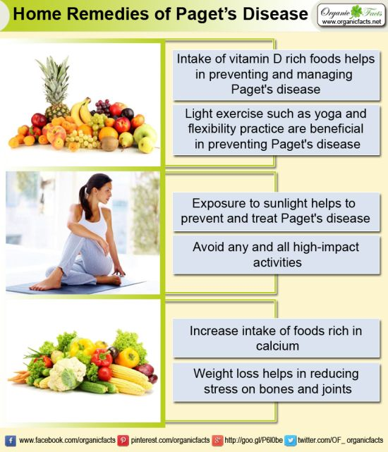 Home Remedies of Paget's Disease