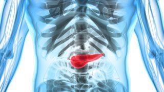 Pancreatitis: Causes & Symptoms