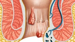 28 Remedies & Treatments for Hemorrhoids or Piles
