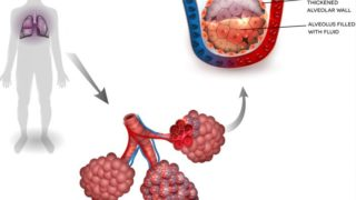 Pneumonia: Causes & Symptoms