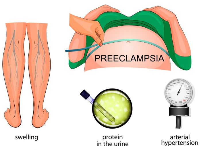 Preeclampsia: Diagnosis & Treatments | Organic Facts