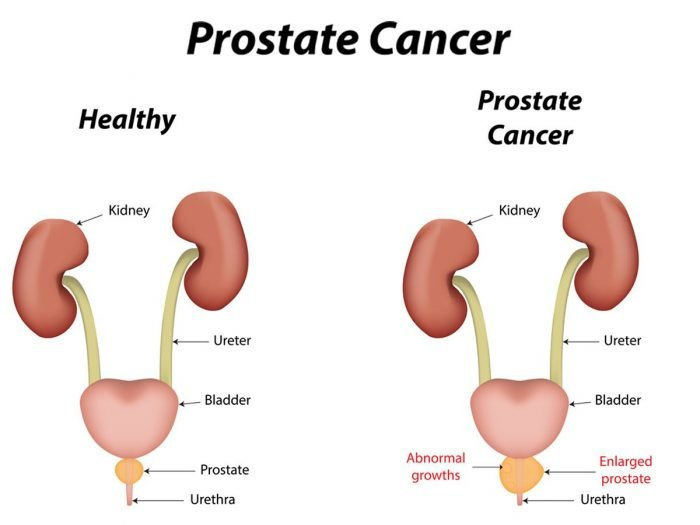 14 surprising home remedies for prostate cancer | organic facts, Skeleton