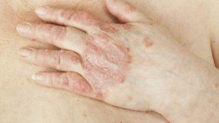 Psoriasis: Types, Symptoms & Triggers