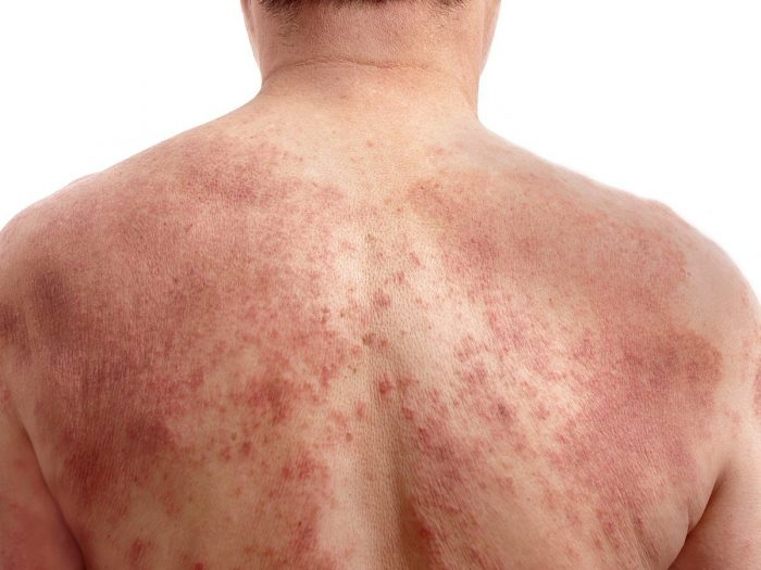 Pictures Of Rosacea 40