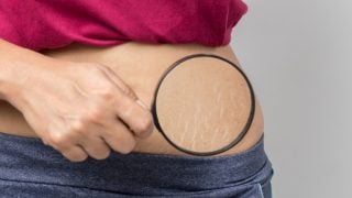 Top 6 Ways To Prevent Stretch Marks During Pregnancy