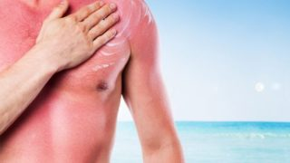 5 Best Essential Oils for Sunburn