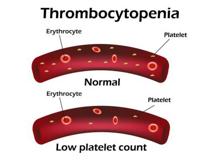 9 Best Remedies for Thrombocytopenia | Organic Facts